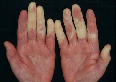 Capilaroscopia